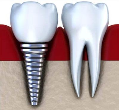 impianti dentali torino, implantologia dentale torino, impianti dentali zona crocetta torino, implantologia dentale zona crocetta torino