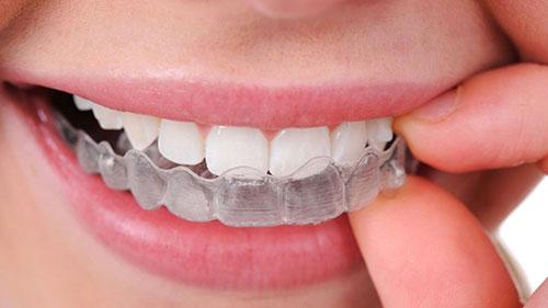 ortodonzia torino, apparecchi torino, ortodonzia zona crocetta torino, apparecchi zona crocetta torino